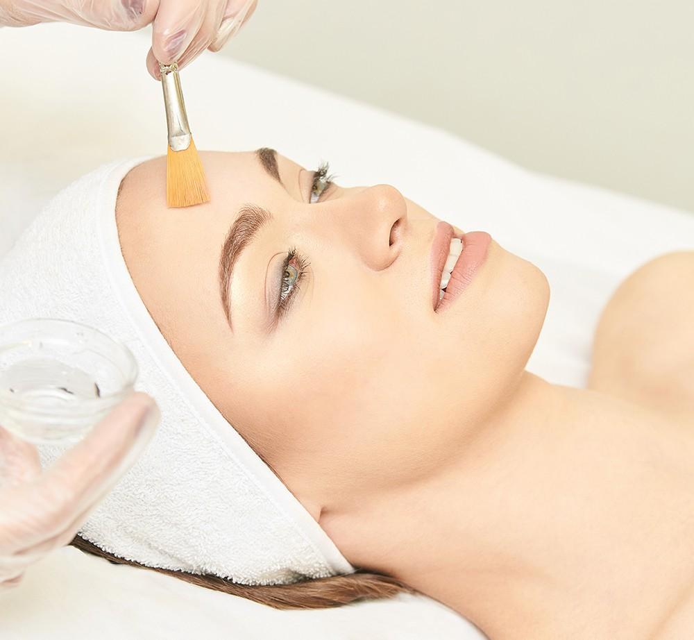 chemical peels for face