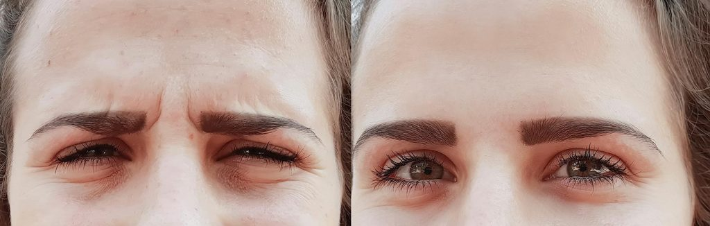 botox for wrinkles before and after