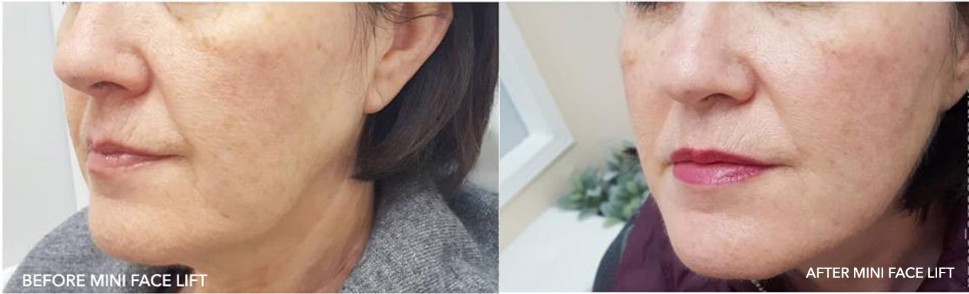 FACE SCULPTING NYC
