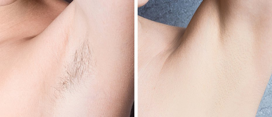 laser hair removal women before and after