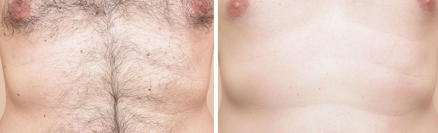 laser hair removal man before after