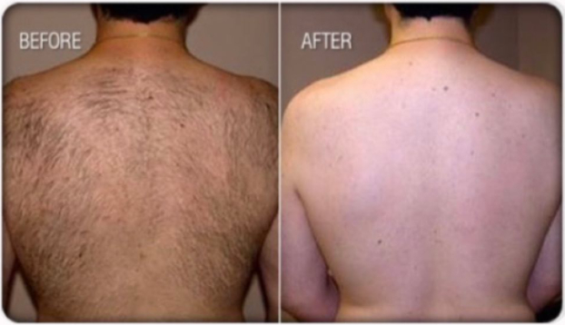 laser hair removal back before after