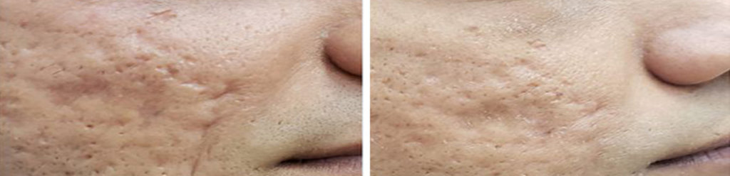 microneedling NYC before and after procedure