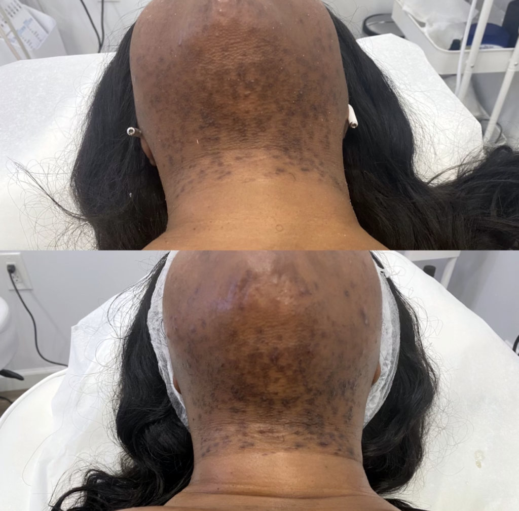 before and after chemical peels treatment