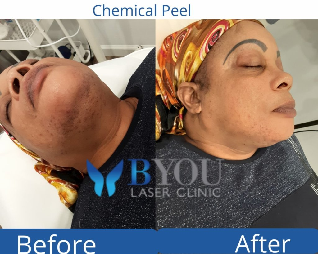 chemical peels before and after